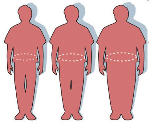 obezite aşamaları