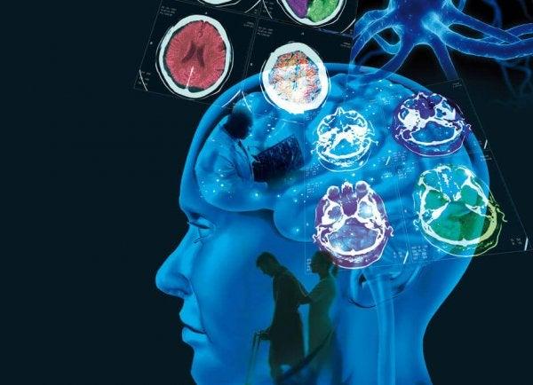Multipl Skleroz: Nedenleri, Belirtileri ve Tedavisi