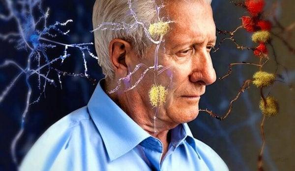 alzheimer hastası yaşlı adam