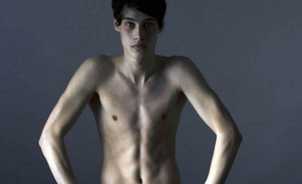 anoreksi sıkıntılı genç