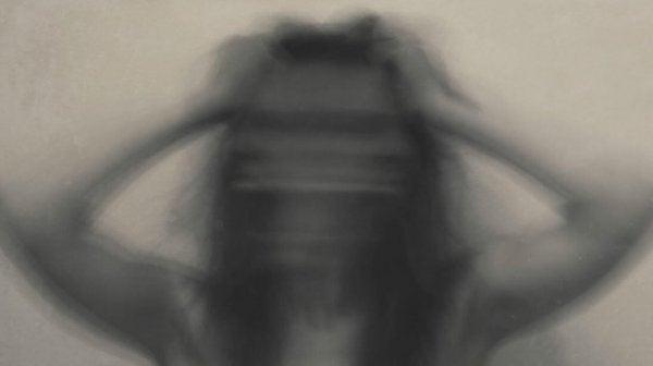 psikotik kadın
