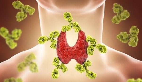 tiroid sorunları