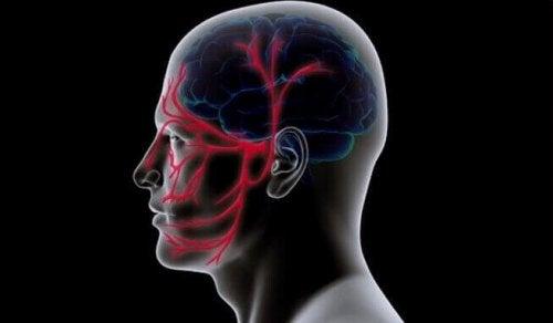 trigeminal nevraljisi olan beyin