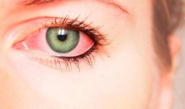Gözü kızarmış bir kadın