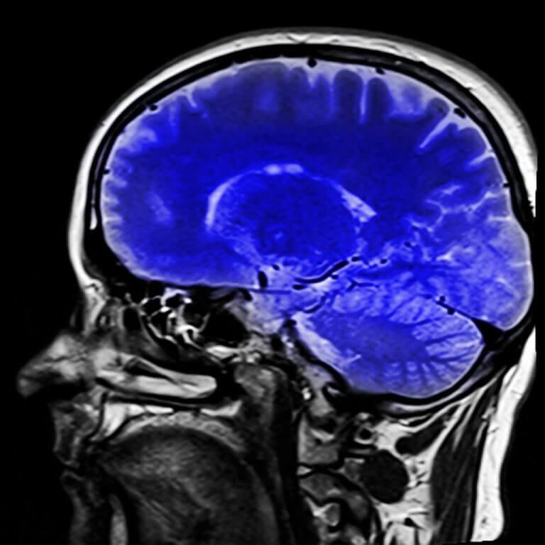 beyin mrı