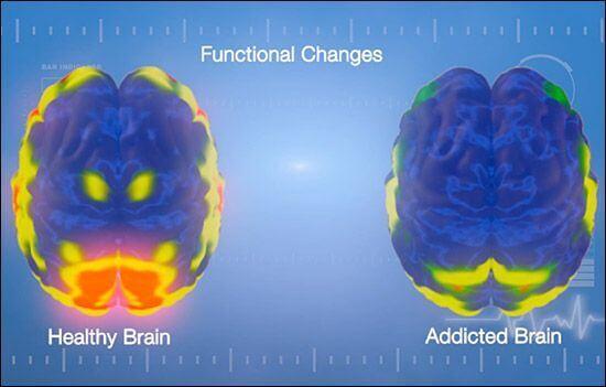 sağlıklı beyin ve bağımlı beyin karşılaştırması