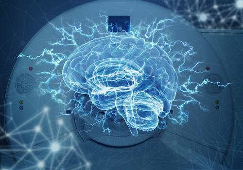 Bilgisayarlı Eksenel Tomografi ve MR Arasındaki Farklar