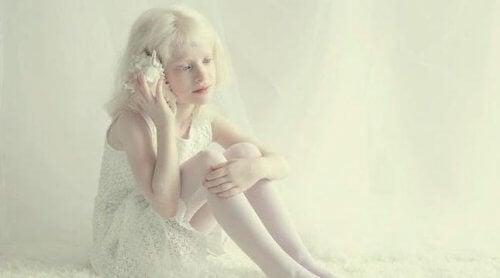 albinizm ile yaşamak