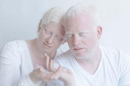 albino bir çift