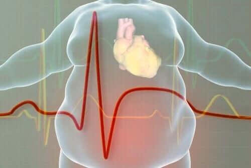 obez vücut grafiği ve kalp atışı ve obezite ile savaşmak