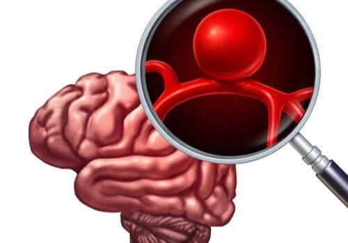 beyinde intrakranyal anevrizma