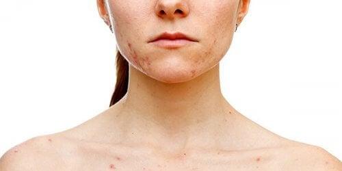 Lekeli cildi olan kadın