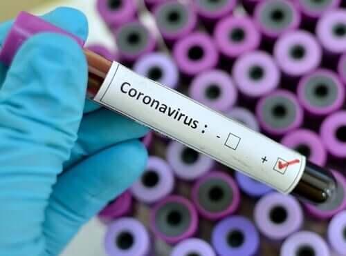 Koronavirüslü örnek