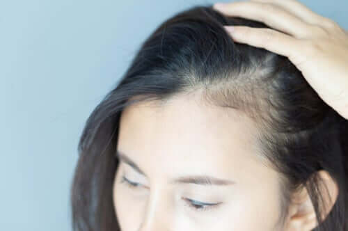 Kadınlarda Saç Dökülmesi ve Psikolojik Etkileri