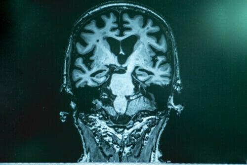 Alzheimer hastalığı beyin