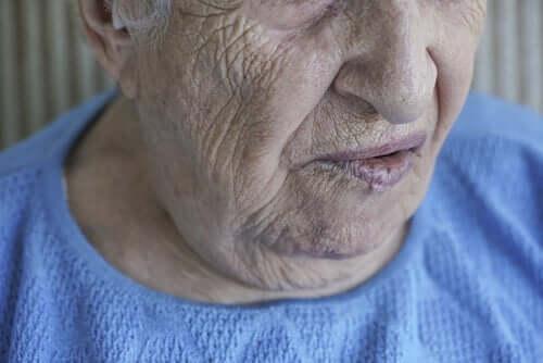 Yüz Felci: Nedenleri ve Tedavi Yöntemleri