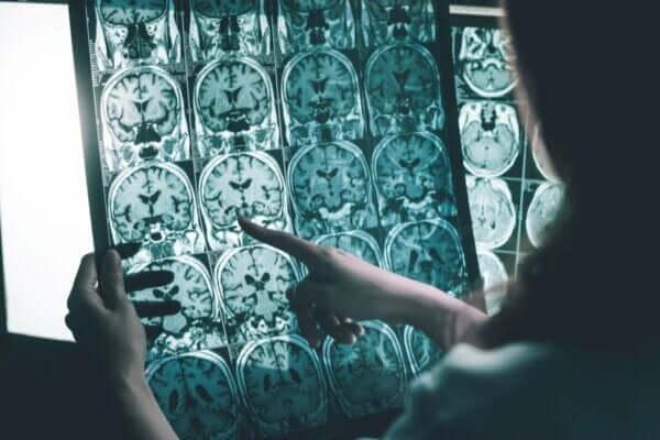 Alzheimer Tedavisi İçin Beyin Dalgalarının Uyarılması