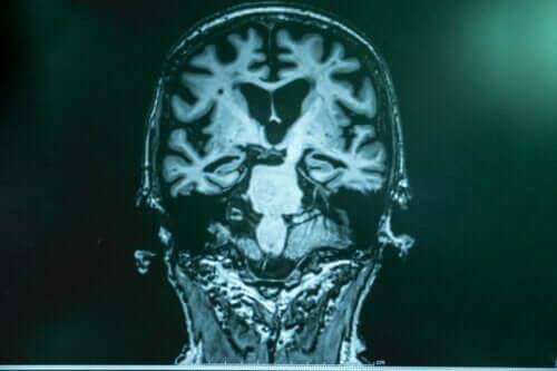 Alzheimer hastalarının beyinlerinde stimülasyon.