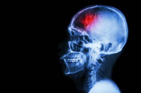 inme sonrası beyin tomografisi