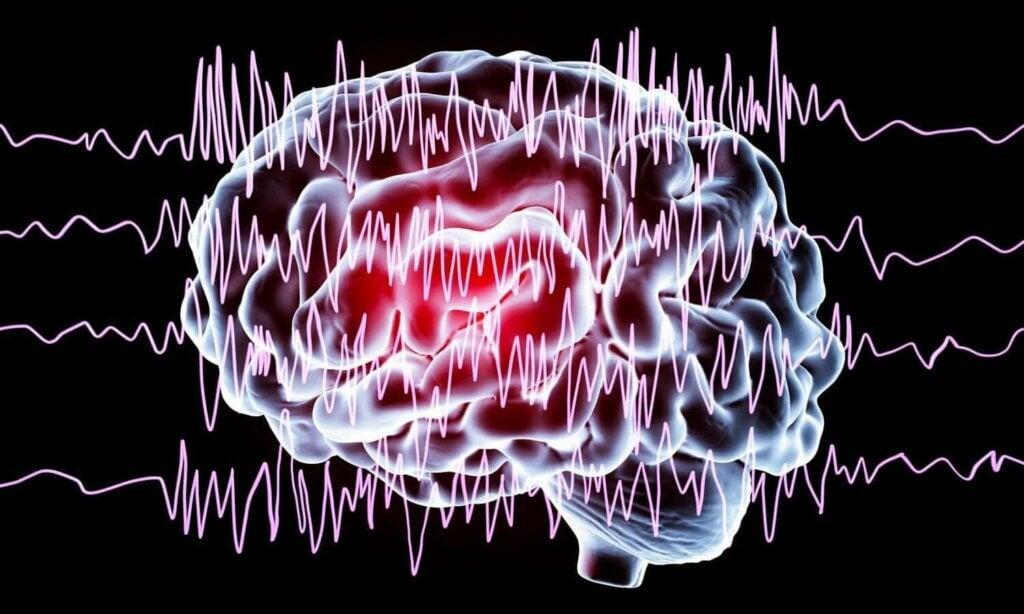 epileptik kriz